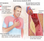 Acute Coronary Syndrome (ACS) : étude de marché pharmaceutique